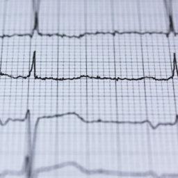 Herzfrequenz-gesteuertes Training - Sinnvoll